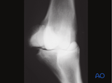Base fractures of the proximal sesamoid bone