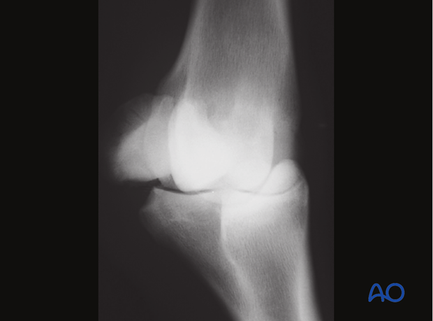 Base fracture of the proximal sesamoid bone - removal