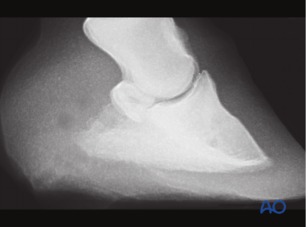 Fracture of the distal sesamoid bone - screw fixation