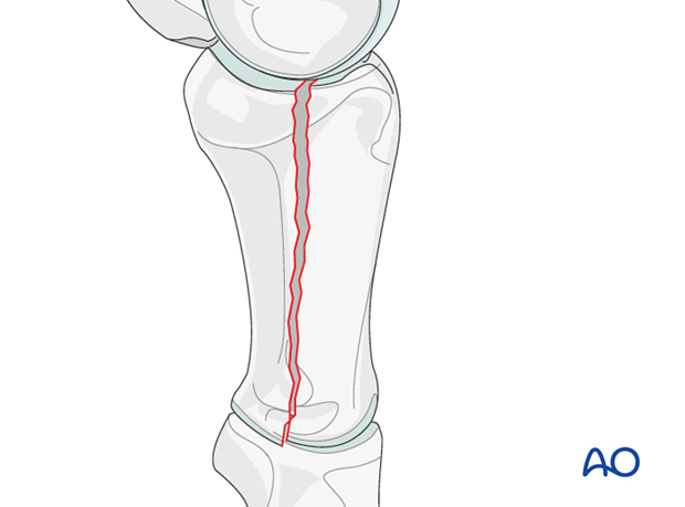 Complete biarticular dorsal fracture