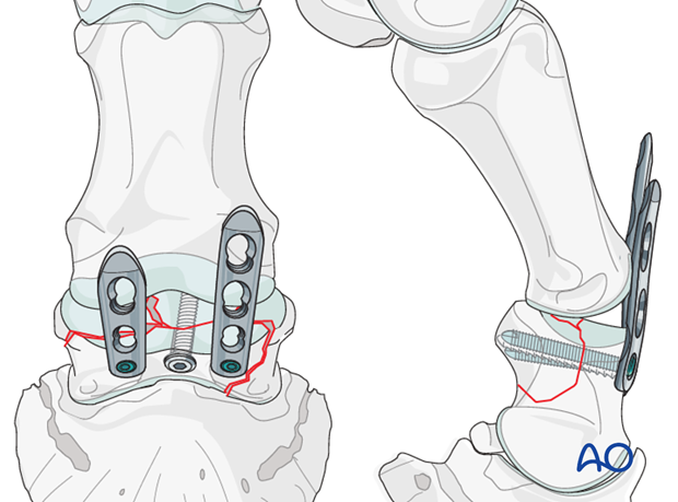 The second plate is applied on the opposite abaxial side and, the distal screw engages the eminence fragment.