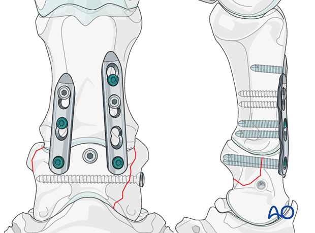 There are cases where it is beneficial to put an additional screw into major fracture fragments.
