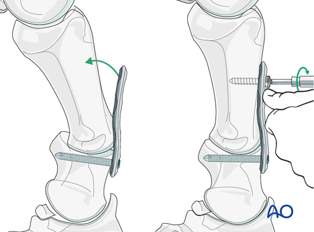 In early mild cases, where the palmar/plantar support structures are not markedly contracted...
