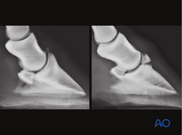 Fractures of the distal phalanx - extensor process fracture