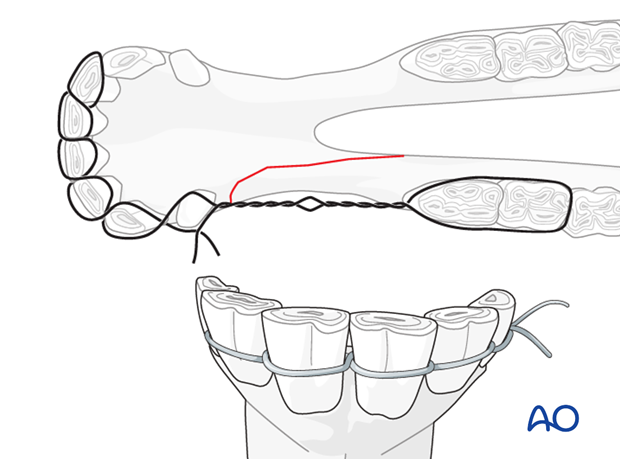 mandible horizontal ramus interdental space unilateral