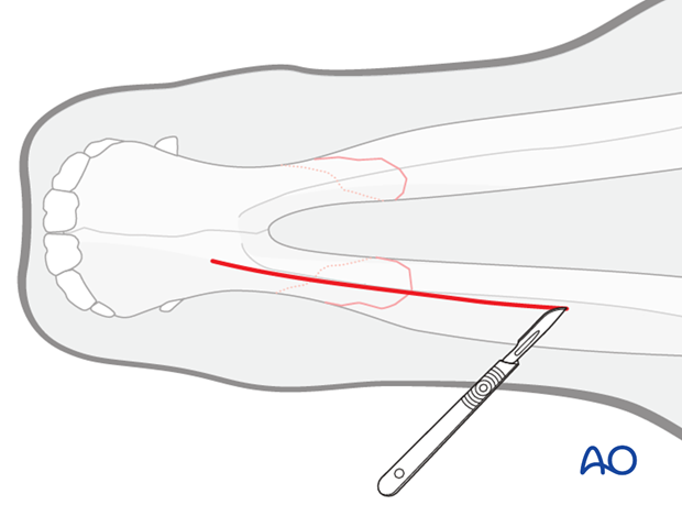 submandibular approach to interdental space unilateral or bilateral fractures
