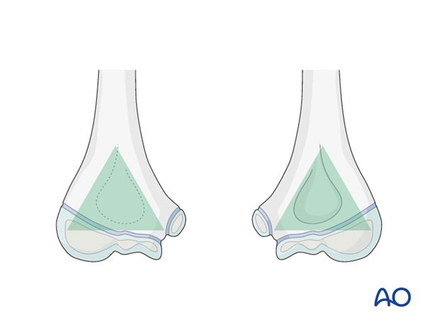 distal humeral surgical and developmental anatomy