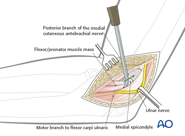 open medial epicondylar reduction and internal fixation