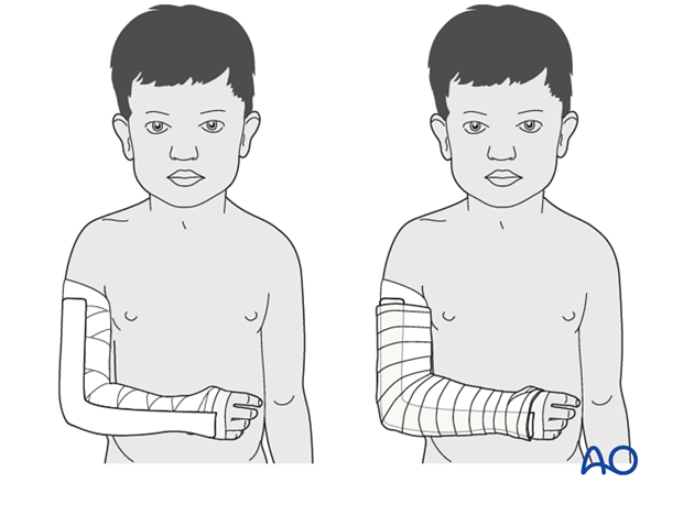 splint immobilization