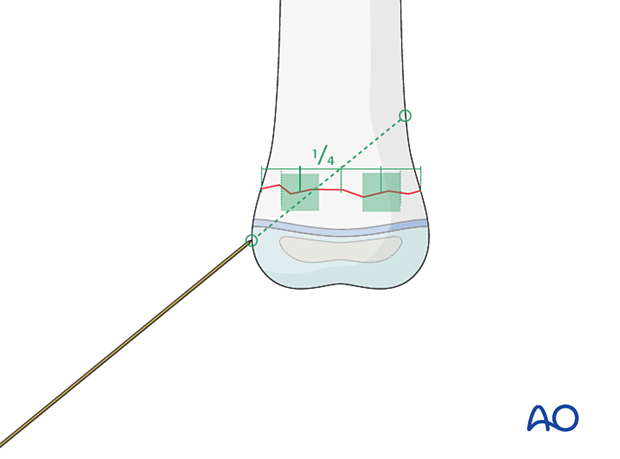 The choice of the entry point must correlate with the planned direction of the K-wire and the end fixation point in the main fragment.