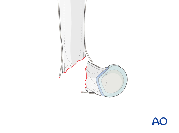 closed reduction of supracondylar fractures