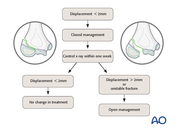 treatment algorithm for intraarticular fractures of the distal humerus
