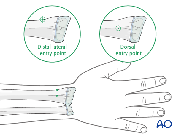 ESIN (radial neck) - Entry points to the radius