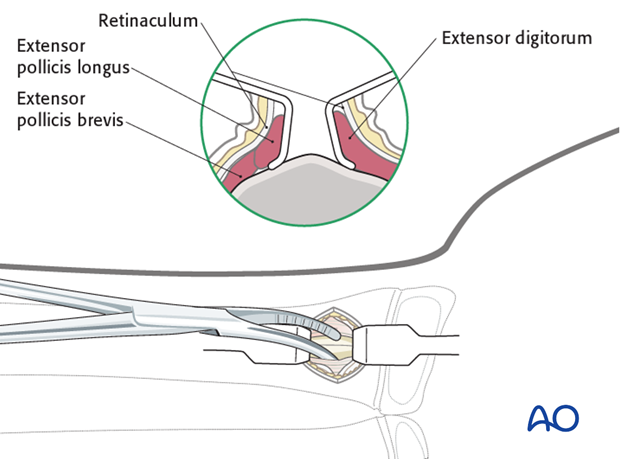 ESIN - Dorsal (Lister's tubercle) entry point to the radius