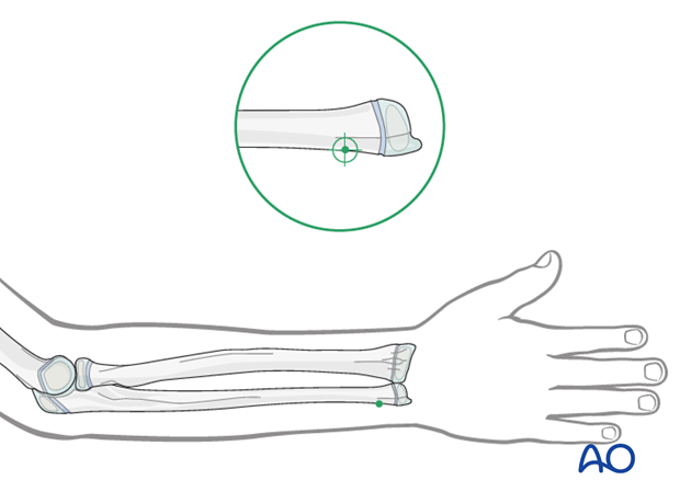 ESIN - Entry point to the ulna