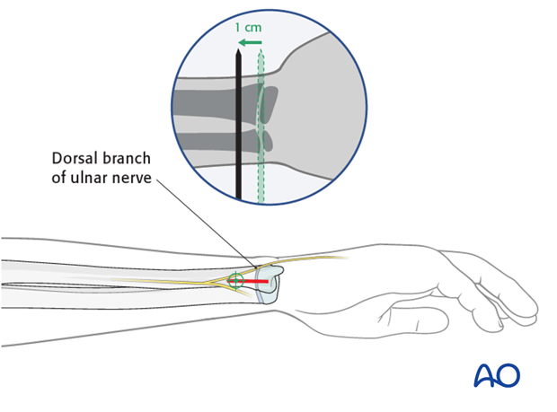 ESIN - Distal medial entry point to the ulna