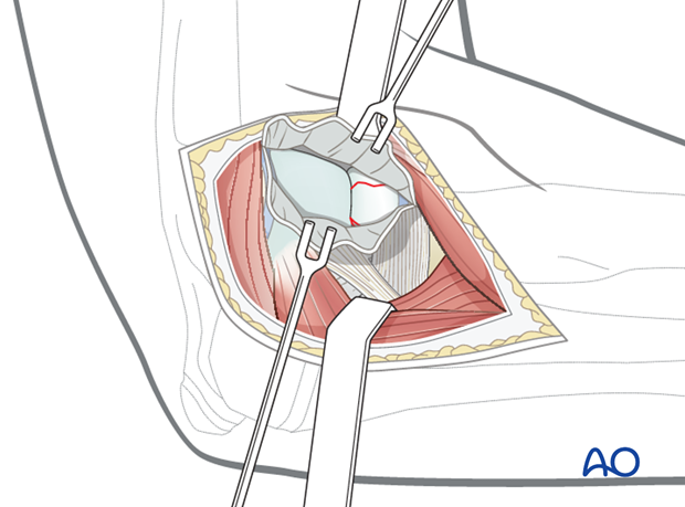 Lateral approach - Release of proximal capsule and muscle
