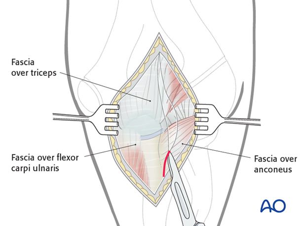 Posterior approach - Dissection