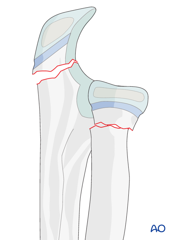 Combination of radial and ulnar fractures