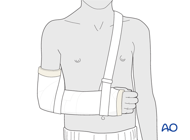 Cast immobilization - The arm is supported in an arm sling around the shoulder.