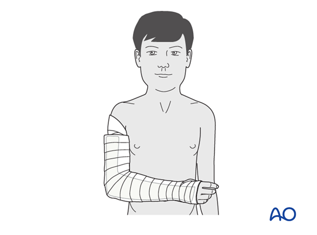 Splint immobilization - Splint application