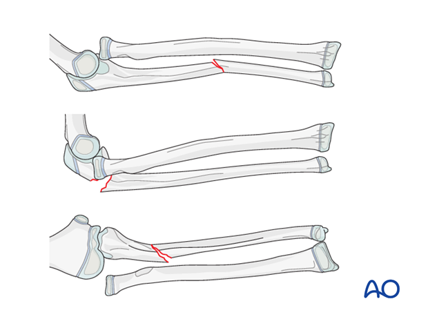 Direction of radial head dislocation and ulnar deformity
