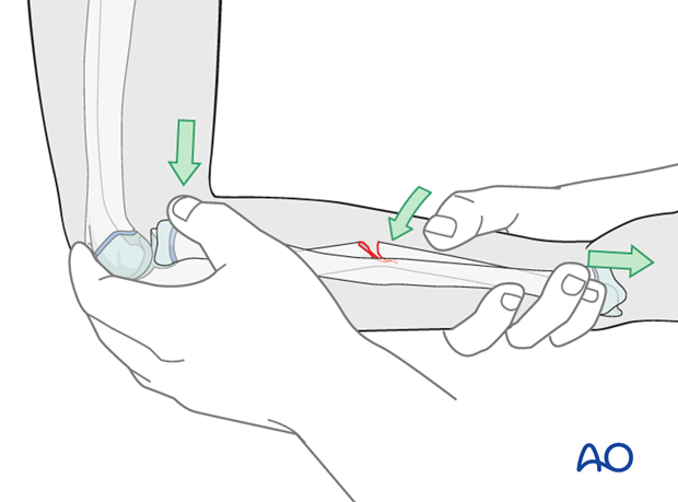 Cast immobilization for Monteggia lesion - Closed reduction of greenstick fracture