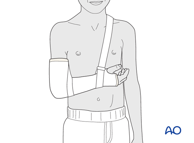 Cast immobilization for Monteggia lesion - Support with a sling