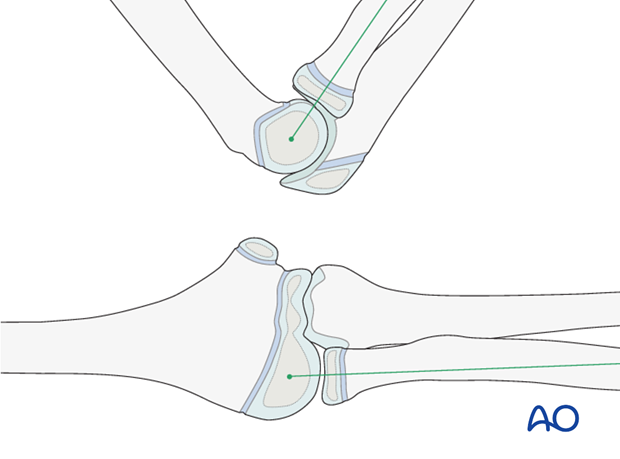 Cast immobilization for Monteggia lesion - Confirmation of proximal radioulnar joint reduction
