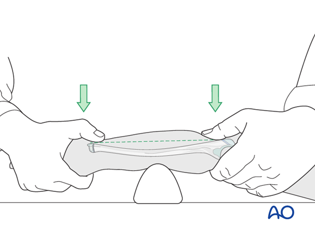 Cast immobilization for Monteggia lesion - Closed reduction of bowing