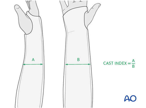 Cast immobilization for Monteggia lesion - X-ray evaluation of the cast