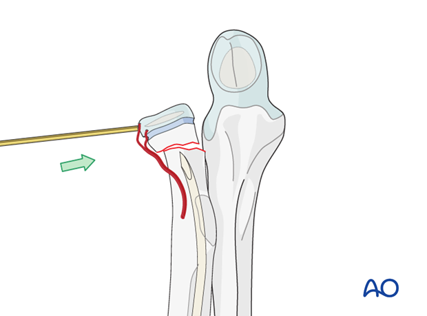 ESIN (radial neck) - Percutaneous K-wire reduction