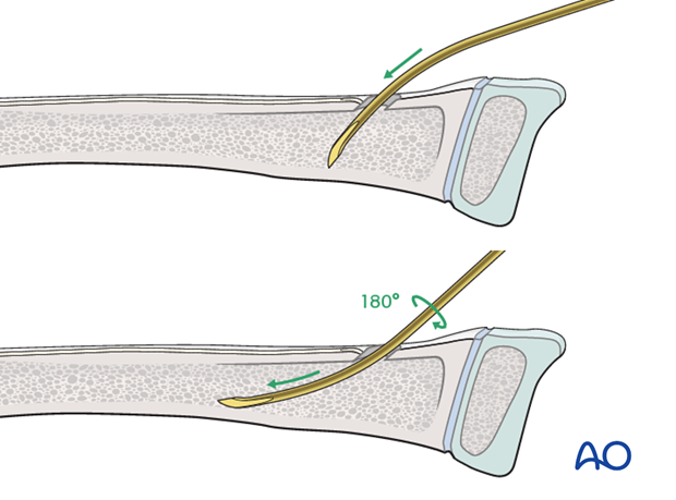 ESIN (radial neck) - Nail insertion