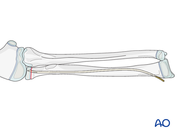 The ESIN method involves closed reduction and internal fixation with an elastic nail.