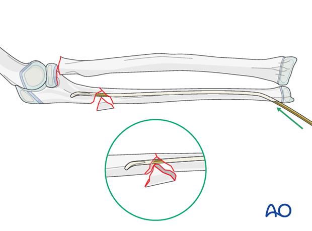 ESIN (ulna) - Reduction with nail