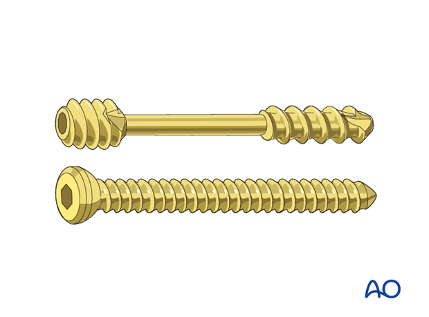 Radial head lag screw - Screw selection