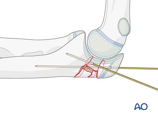 Open reduction; plate fixation (olecranon) - Reduction of articular fragments
