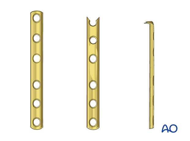Open reduction; plate fixation (olecranon) - Hook plate