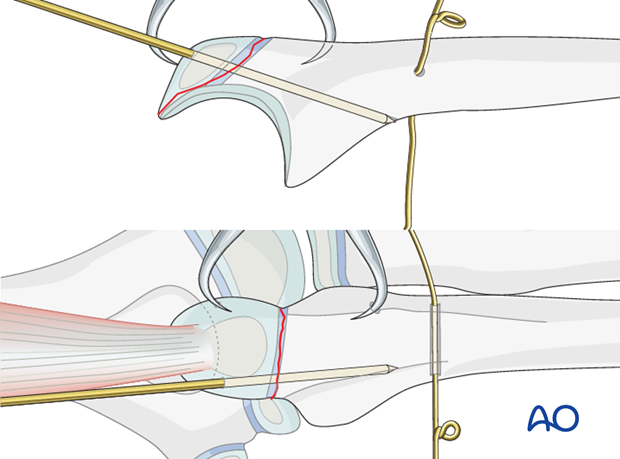 Open reduction; tension band fixation - K-wire insertion