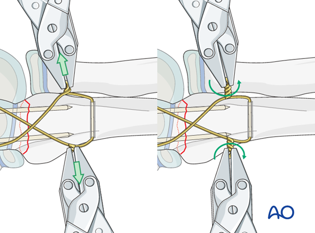 Open reduction; tension band fixation - Wire fixation