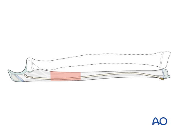 ESIN of the ulna