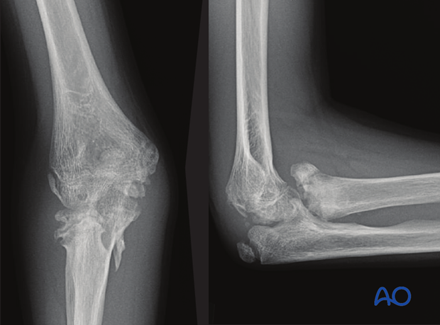 complications of radial head and neck fractures