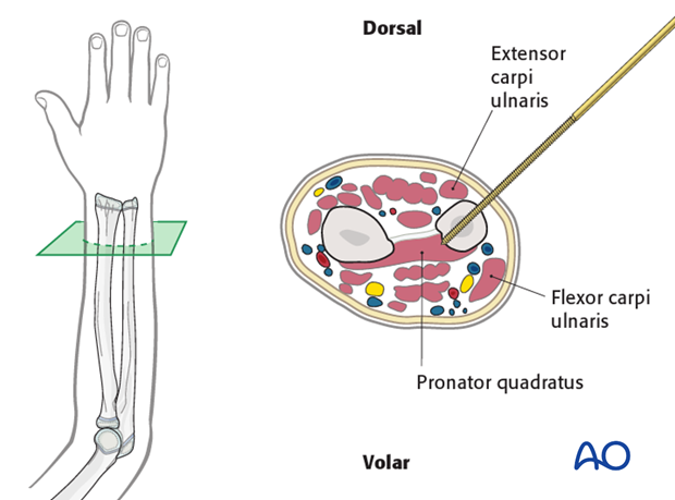 This cross-section illustrates a pin inserted into the distal ulna.