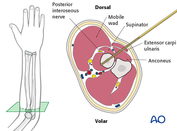 Proximal pin insertion