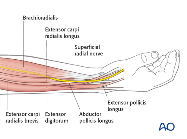 Safe zone in the distal radius