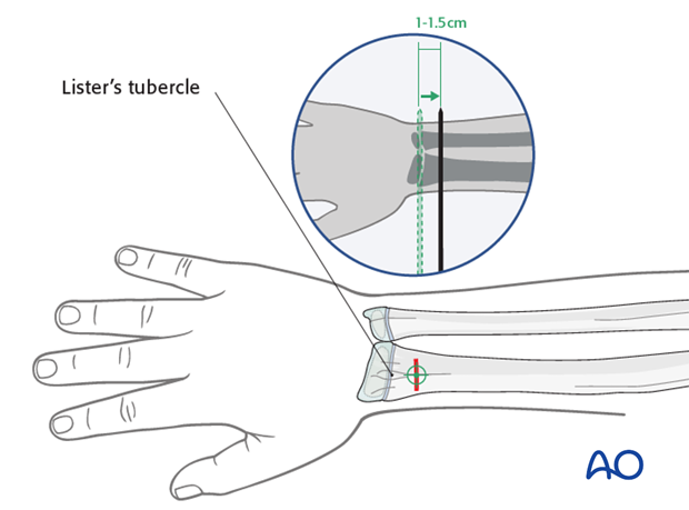 Lister's tubercle entry point for the radius
