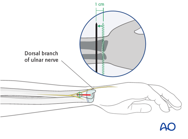 Distal medial entry point for the ulna