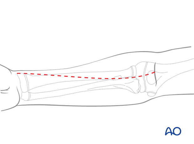 The anterior (Henry) approach offers good exposure of the whole length of the radius.