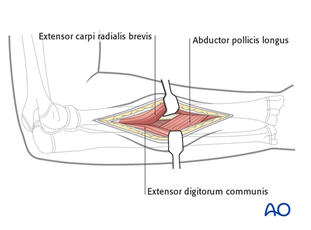 Exposure of the supinator and abductor pollicis longus