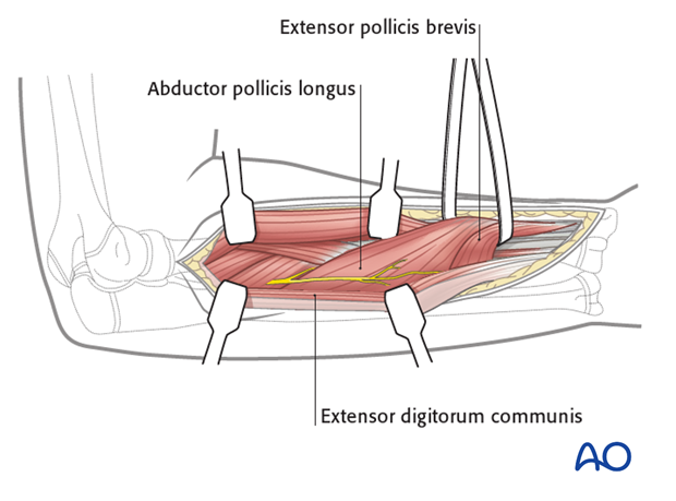 Deep dissection - distal extension